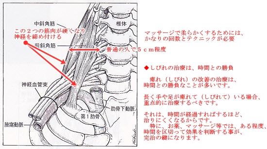 胸郭出口症候群説明