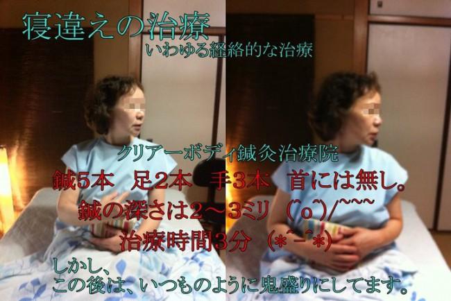 寝違えの治療2012年6月