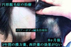 円形脱毛症の治療1 福岡県福津市