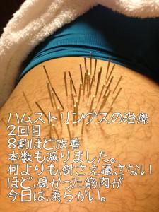 ハムストリングスの治療2福岡県福津市在住
