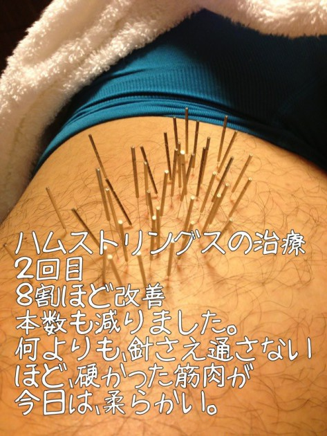 ハムストリングの肉離れの治療~福岡県福津市在住~