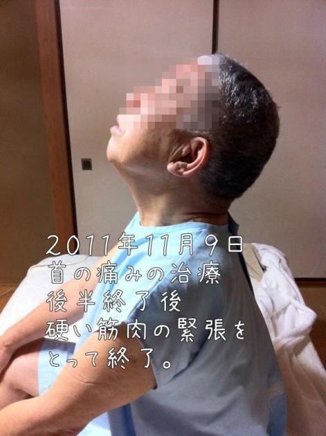 首、肩、肩甲骨、腕の筋肉が引きつって、痛みが出て上を向くことができない患者さんの治療