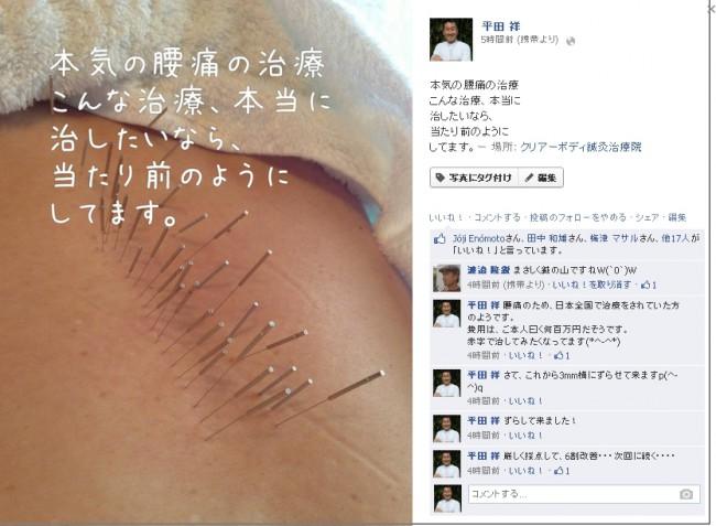 腰痛治療 ぎっくり腰の治療|福岡県福津古賀宗像北九州市