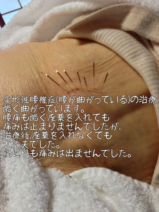 変形性腰椎症(腰が曲がっている)の治療