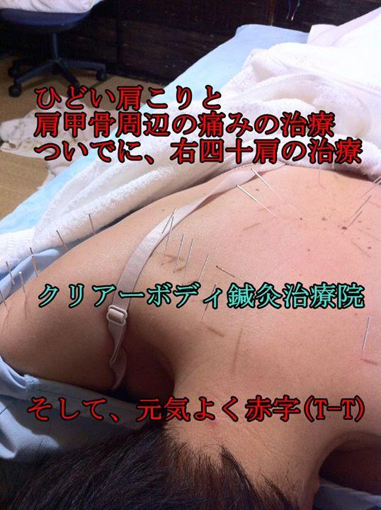 ひどい肩こりと肩甲骨周辺の痛みの治療