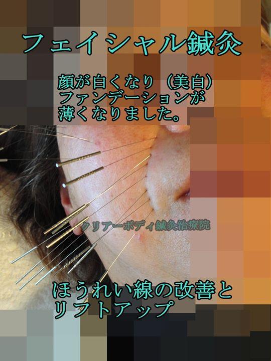ファイシャル鍼灸(美容鍼)顔が白くなり(美白)ファンデーションが薄くなりました