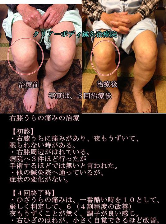 右膝うらの痛みの治療