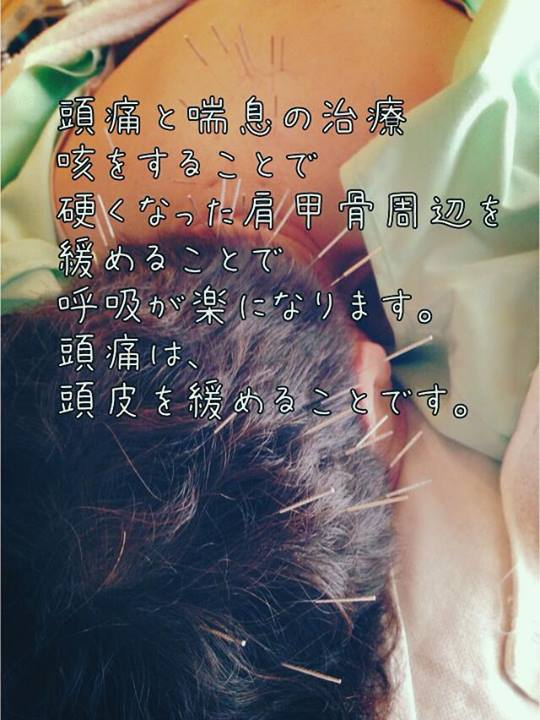 頭痛と喘息の治療
