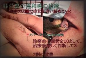 ふくらはぎ・ハムストリング・膝裏の治療